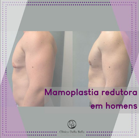 Mamoplastia redutora em homens