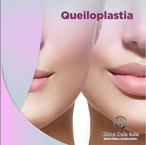 Queiloplastia