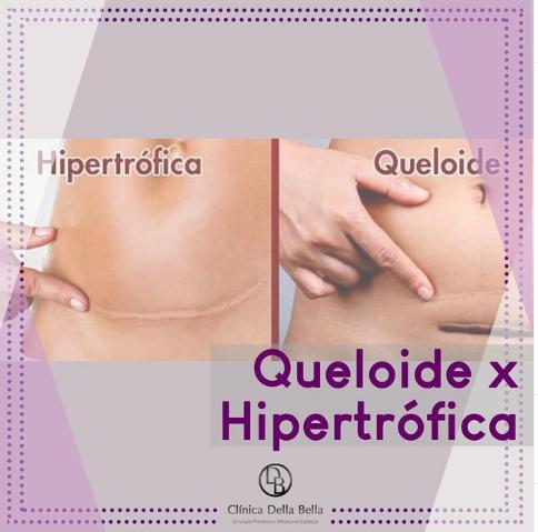 Queloide x Hipertrófica